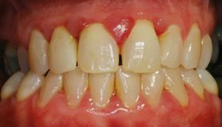 parodontoz