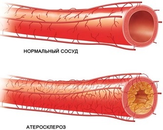 lechenie-ateroskleroza